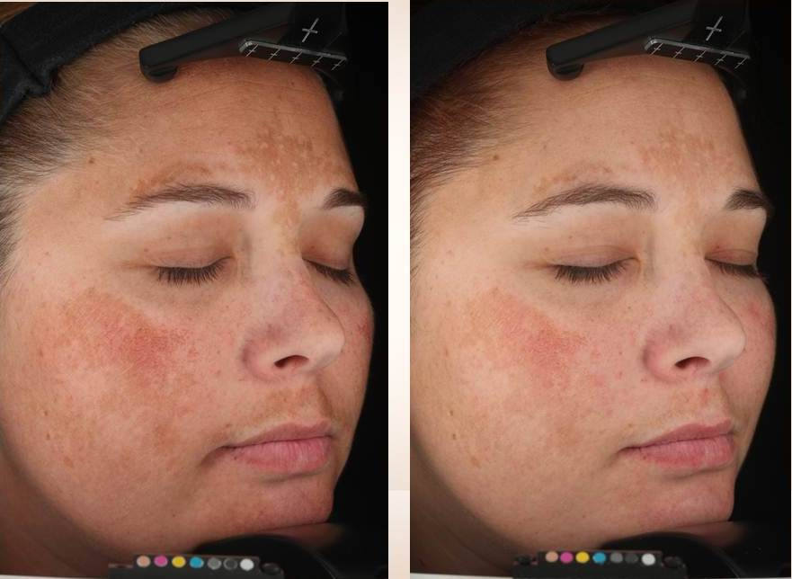 Get rid of Brown Spots for Good! Now 20% off for June