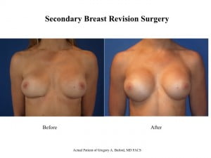Secondary Breast Revision