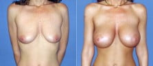 breast-augmentation-06a