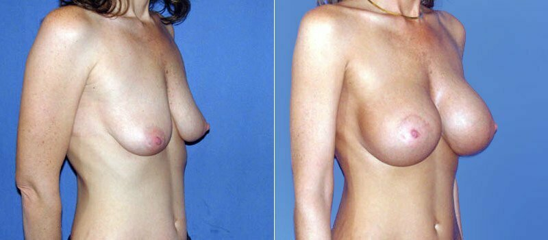 breast-augmentation-06b