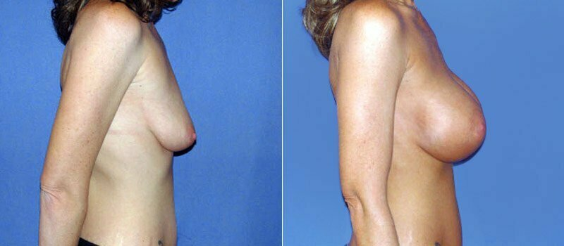 breast-augmentation-06c