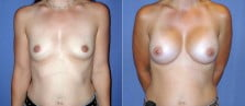 breast-augmentation-17a