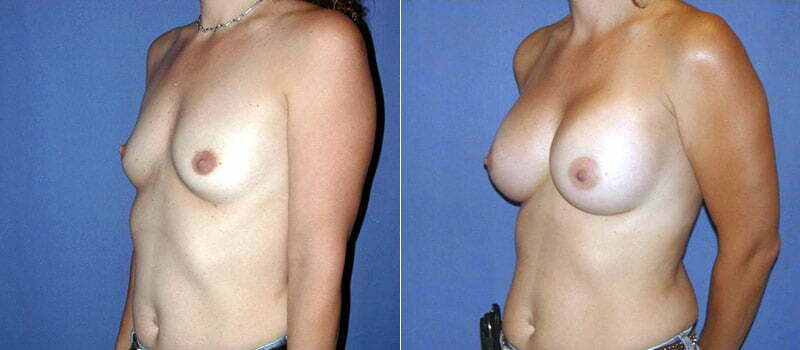 breast-augmentation-17b