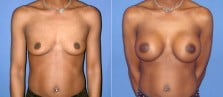 Breast Augmentation 11
