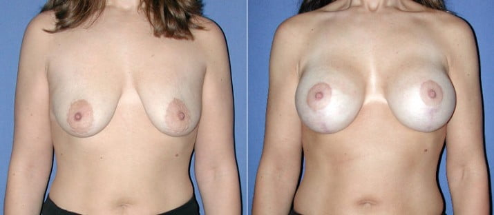 Breast Lift with Implants 1