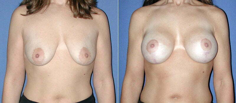 breast-lift-with-implants-01a