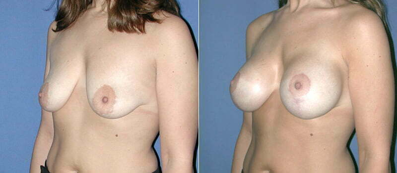 breast-lift-with implants-01b