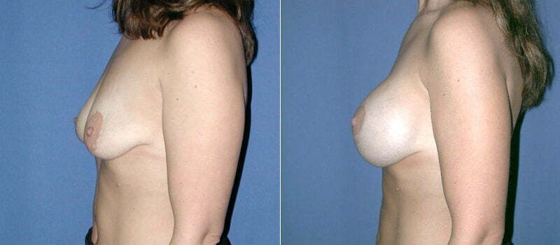 breast-lift-with-implants-01c
