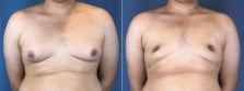 Male Breast Reduction 2