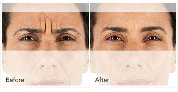 xeomin injection before and after reults