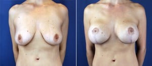 breast-lift-with-implants-3172a