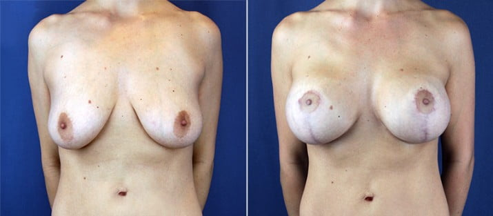 Breast Lift with Implants 2