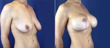 breast-lift-with-implants-3172b