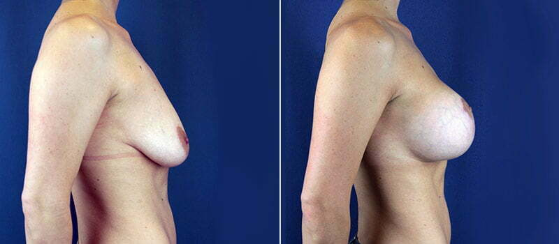 breast-lift-with-implants-3172c