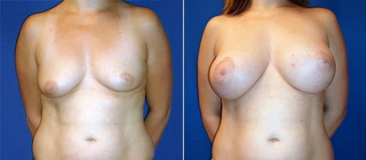 Breast Lift with Implants 3