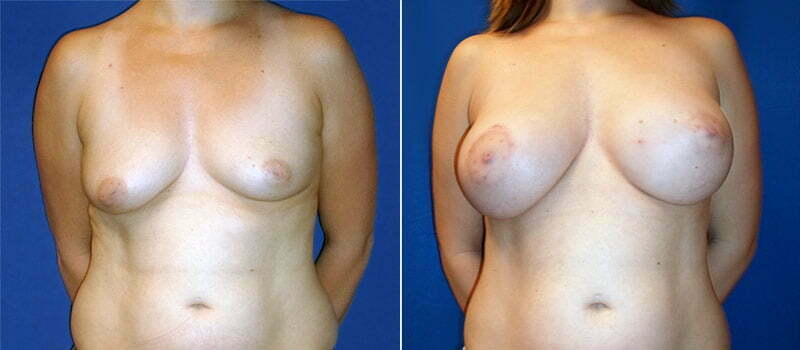 breast-lift-with-implants-3200a