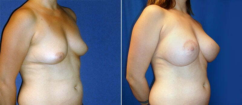 breast-lift-with-implants-3200b