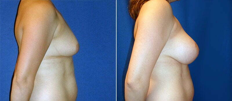 breast-lift-with-implants-3200c