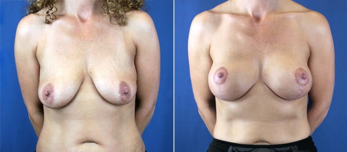 Breast Lift with Implants 4