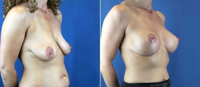 breast-lift-with-implants-3211b