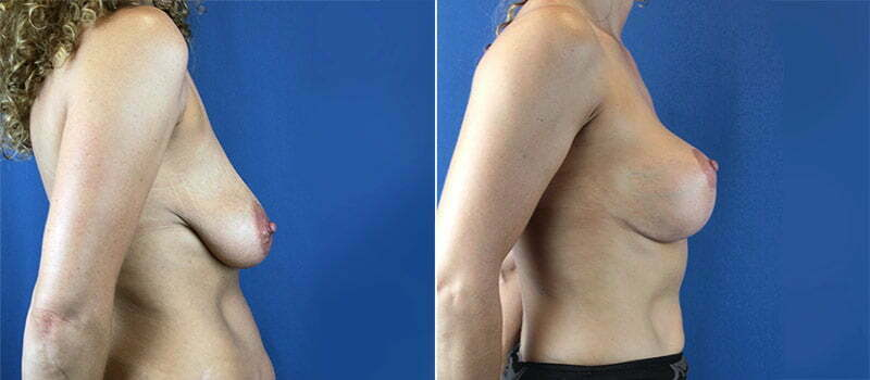 breast-lift-with-implants-3211c