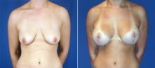 breast-lift-with-implants-3223a