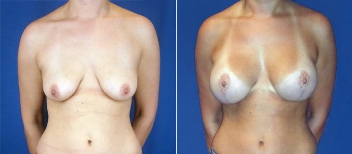 Breast Lift with Implants 5