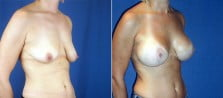 breast-lift-with-implants-3223b