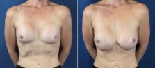 Breast Revision 4