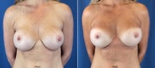 Breast Revision 5