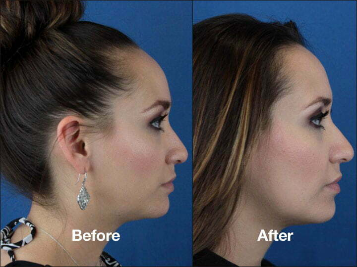 See more before and after photos of our patients