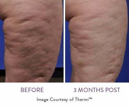 ThermiSmooth Body Before and After