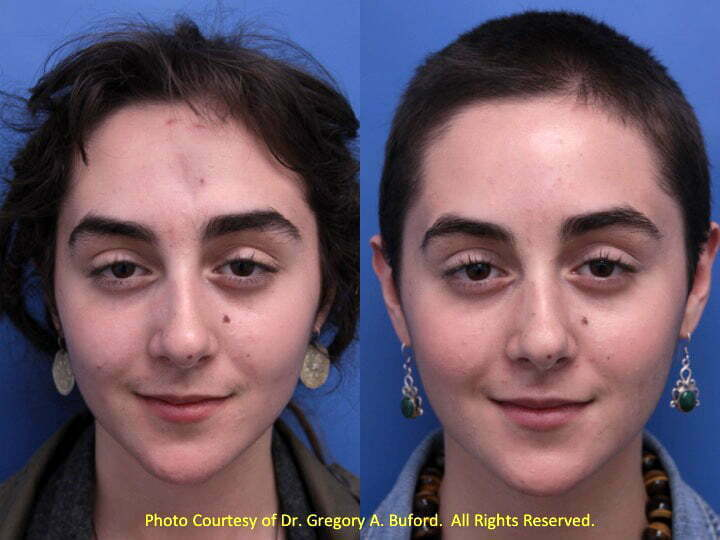 Plastic surgery facial scars