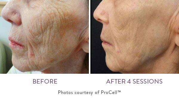 ProCell Before and After
