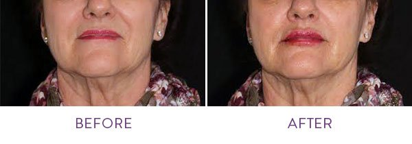Volbella Before and After Close Up