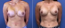 Breast Revision 8