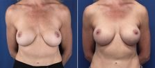 Breast Revision 9