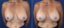 Breast Revision 7