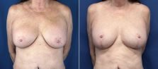Breast Revision 6