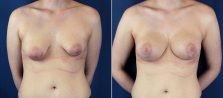 breast-lift-with-augmentation-1252a-buford