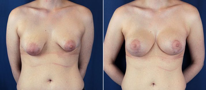 Breast Lift with Implants 10