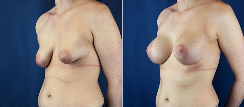 breast-lift-with-augmentation-1252b-buford