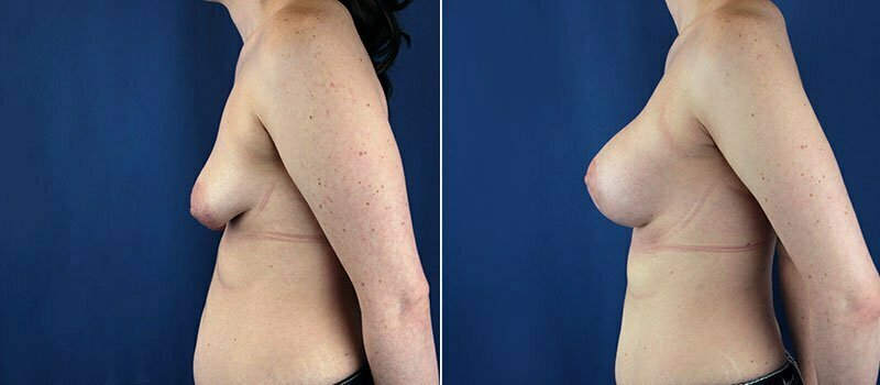 breast-lift-with-augmentation-1252c-buford