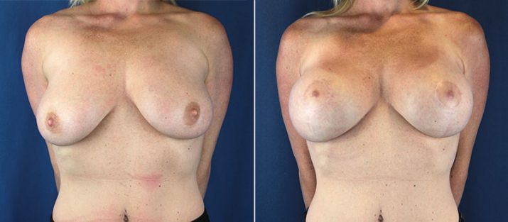 Breast Lift with Implants 8