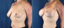 breast-lift-with-augmentation-1875b-buford