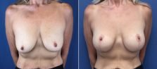 breast-lift-with-augmentation-2614a-buford