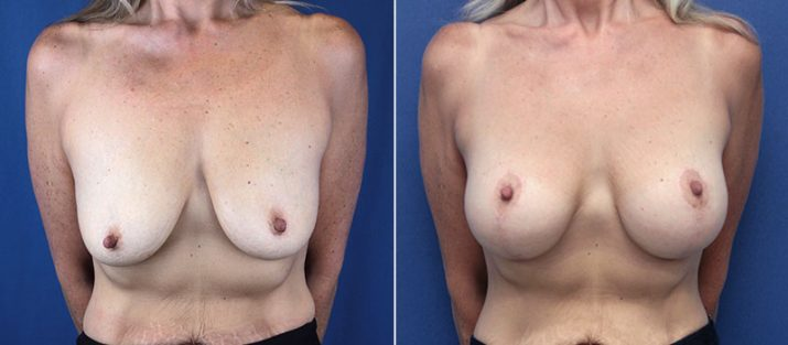 Breast Lift with Implants 7