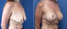 breast-lift-with-augmentation-2614b-buford