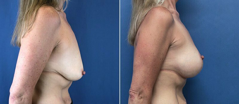 breast-lift-with-augmentation-2614c-buford