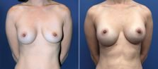 Breast Augmentation with Nipple Reduction 6